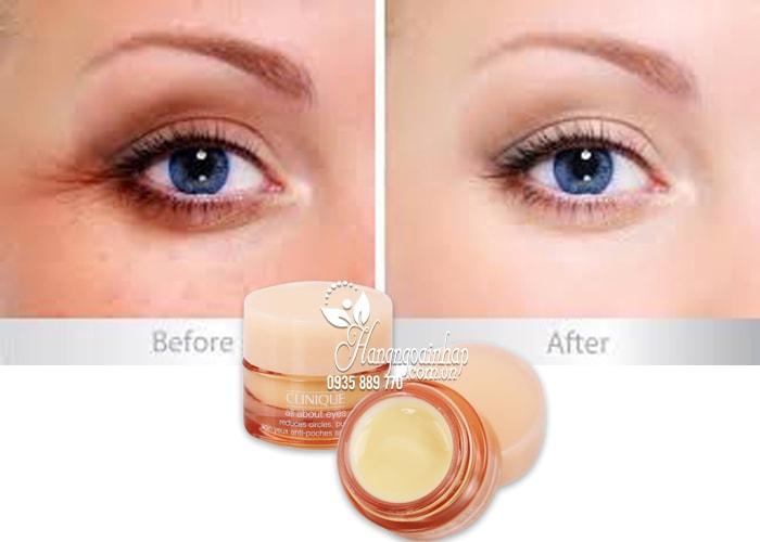 Kem dưỡng mắt Clinique All About Eyes 7ml - xua tan bọng mắt 2