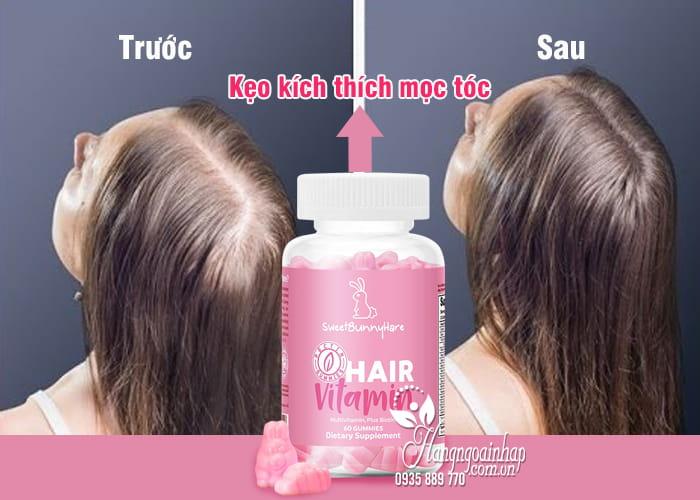 Kẹo dẻo kích thích mọc tóc Sweet Bunny Vegan Hair Vitamin 2
