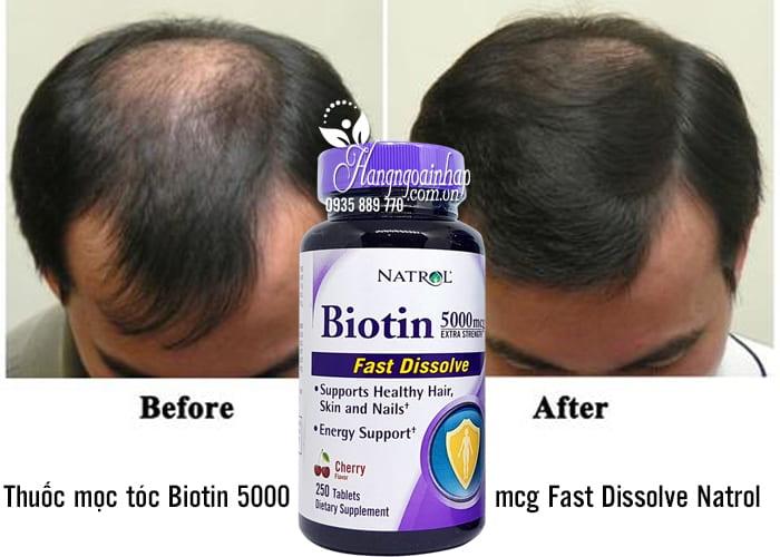 Thuốc mọc tóc Biotin 5000mcg Fast Dissolve Natrol của Mỹ 250 viên 2
