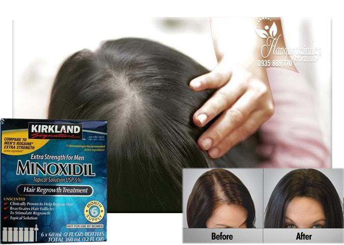 Thuốc Mọc Tóc Trị Hói Đầu Minoxidil Kirkland Của Mỹ