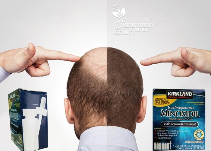 Thuốc Mọc Tóc Trị Hói Đầu Minoxidil 5% Kirkland Của Mỹ
