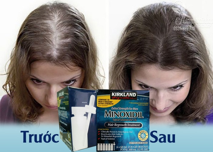 Thuốc Mọc Tóc Trị Hói Đầu Dành Cho Nam Của Mỹ Minoxidil 5% Kirland