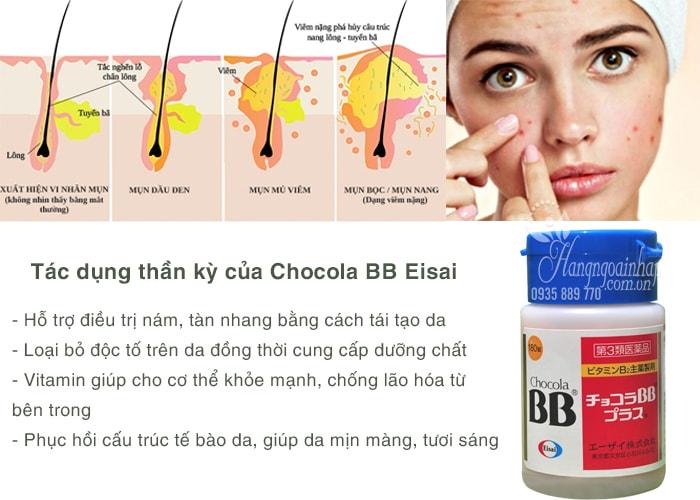 Viên uống trị mụn, nám, tàn nhang Chocola BB Eisai 180 viên chính hãng Nhật Bản