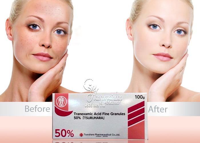 Bột trị nám trắng da Tranexamic Acid 50 Tsuruhara 100g 3