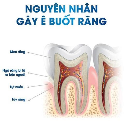 nguyên nhân gây ê buốt răng