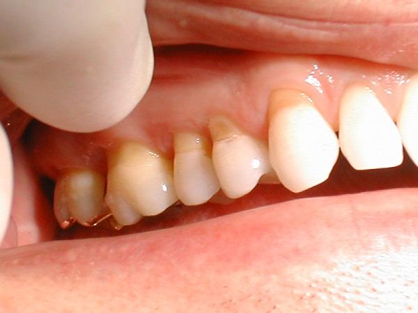 răng nhạy cảm là gì