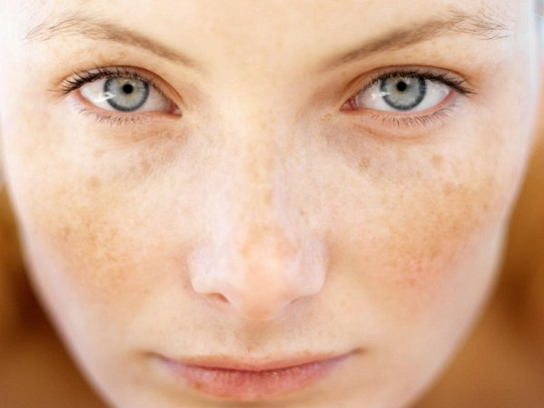 nám da mặt và cách điều trị