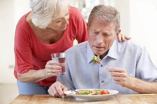 mắc bệnh Alzheimer
